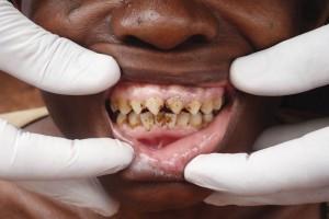 Tallado dental típico del pueblo pigmeo Baka de Camerún.