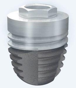 Figura 2. Implante Ticare Osseous PS de 5 x 6mm. El aumento del diámetro compensa la disminución de la longitud.