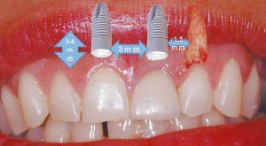 Figura 3. Principales determinantes biológicos (posicionamiento tridimensional). Distancia entre implante y diente, entre 1,5 y 2 mm; distancia entre implantes, 3 mm; distancia a las corticales 2 mm, profundidad de inserción entre 3 y 4 mm desde el límite amelo-cementario o el margen gingival.