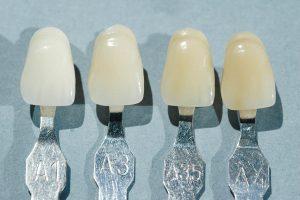 Figura 3. Con frecuencia el color de la prótesis es el único elemento que nuestros pacientes valoran como calidad de nuestro trabajo.
