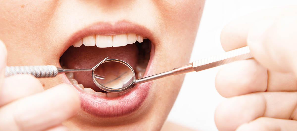 Células encías periodontitis
