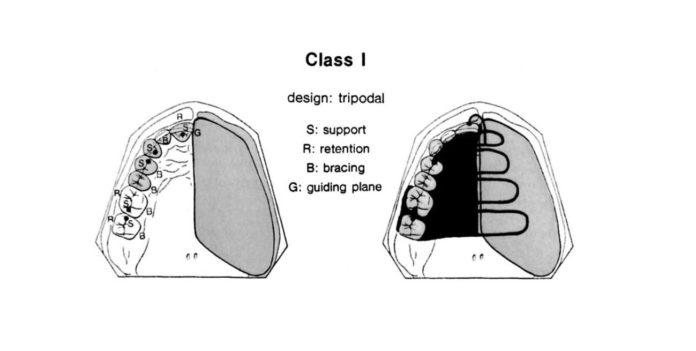 Rehabilitación protética