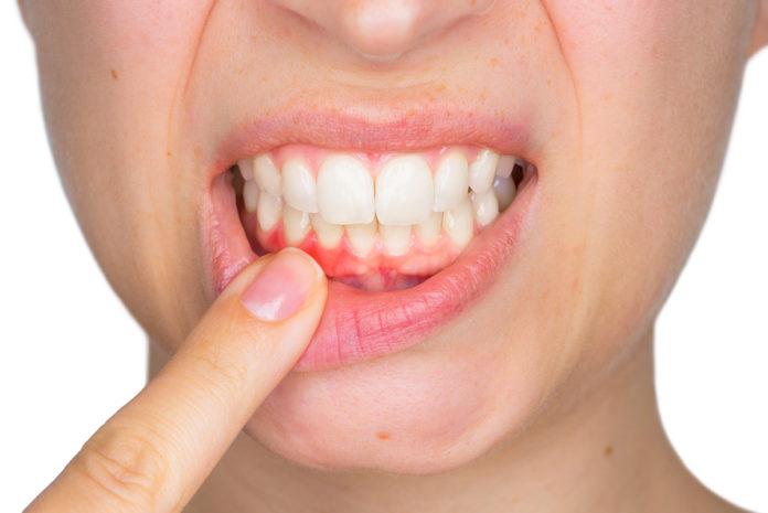 Color encías dientes