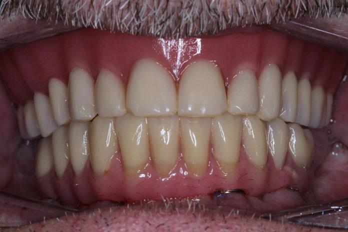 Rehabilitación mandibular implantes