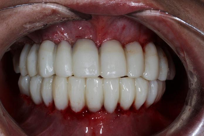 Rehabilitación implantes