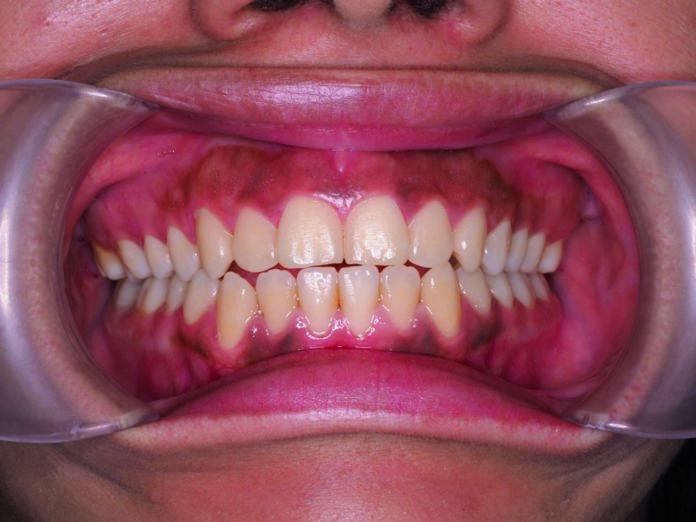 332_OdontologiaDigital