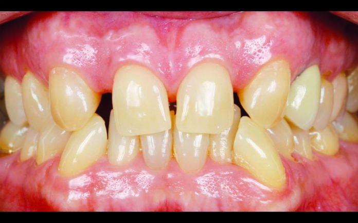 333_OdontologiaDigital