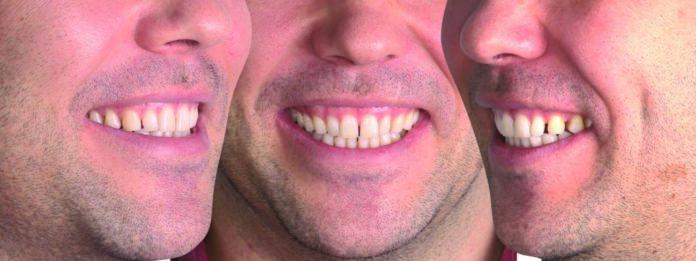 334_OdontologíaDigital