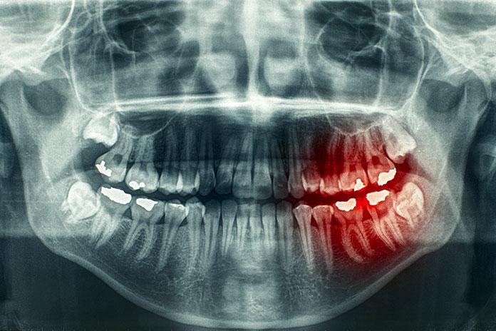 El 90% de los casos de cáncer oral y orofaríngeo se podrían curar con un diagnóstico precoz