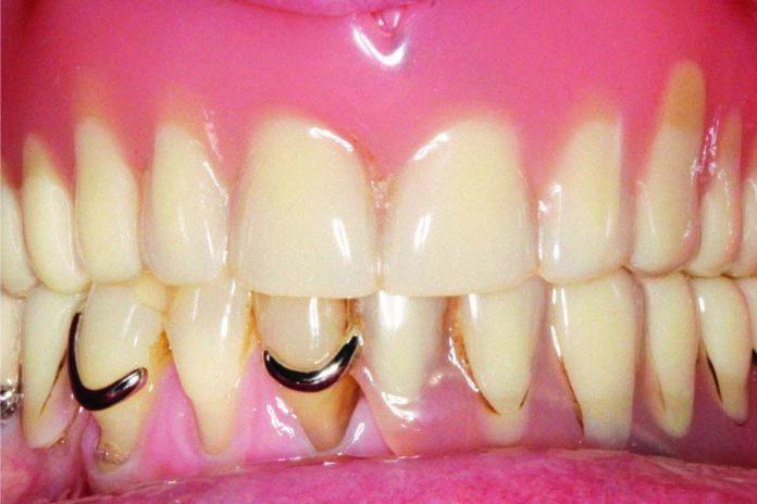 Atrofia combinada (horizontal y vertical) en el maxilar superior