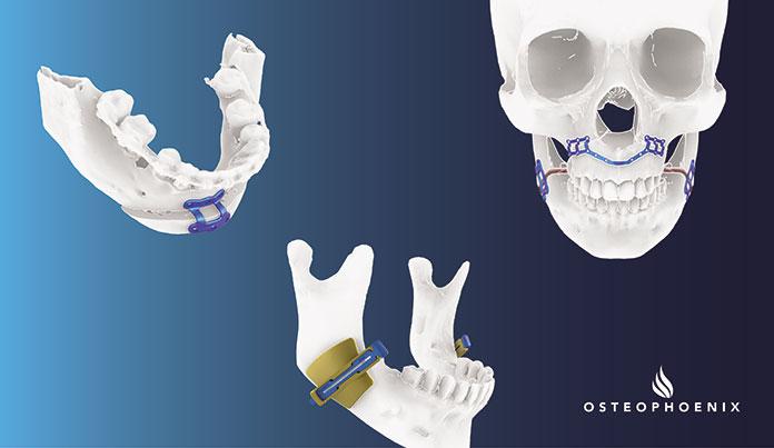Reconstrucción maxilofacial a medida de Osteophoenix