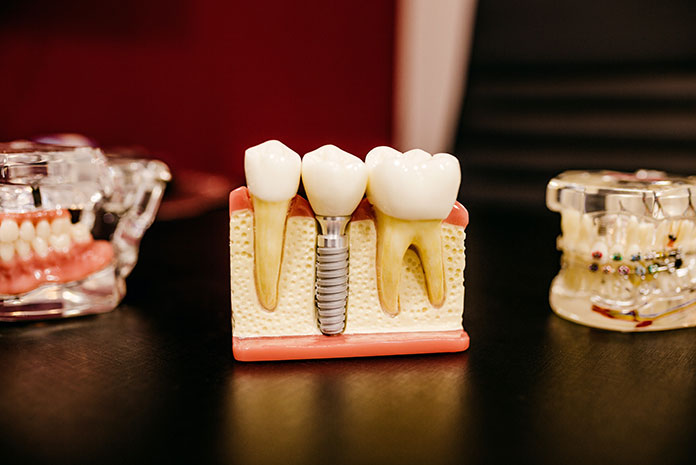 Cad/cam en odontología digital y manejo de tejidos blandos periimplantarios