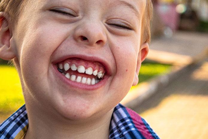 Estudio sobre las caries en los niños