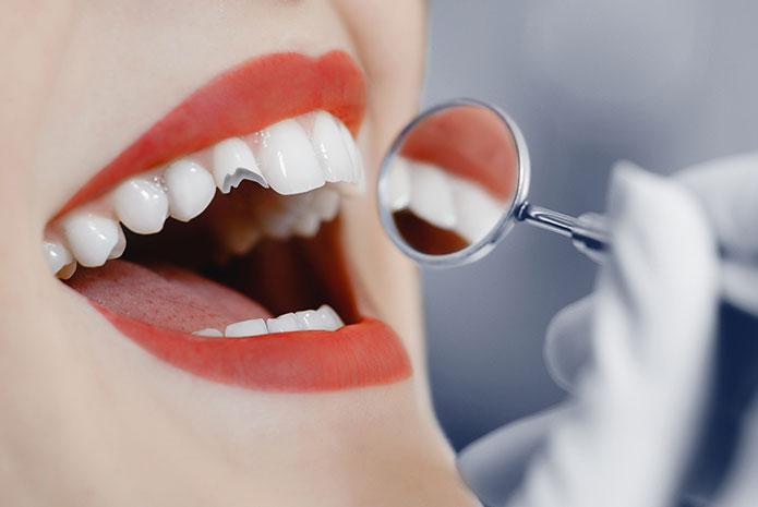 Qué hacer si sufres un traumatismo dental