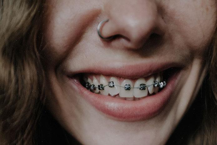 ¿A qué edad es conveniente comenzar un tratamiento de ortodoncia?