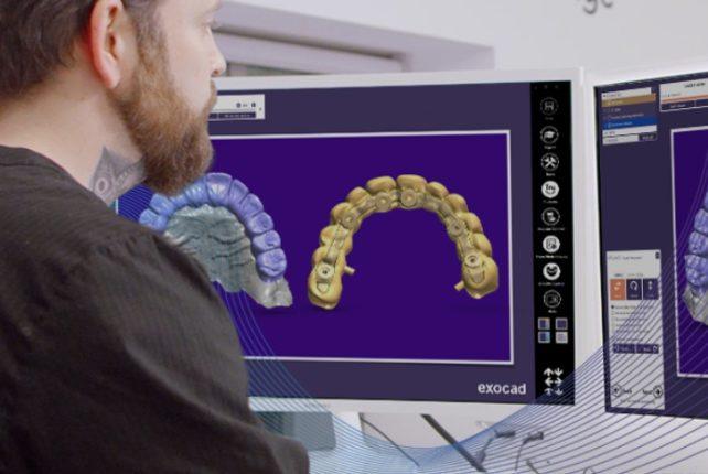 Tecnología CAD/CAM de Exocad