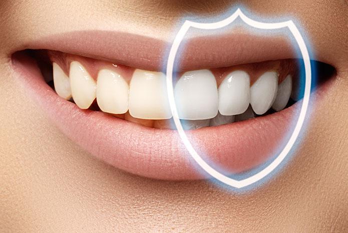 El peróxido de hidrógeno en los kits de blanqueamiento dental