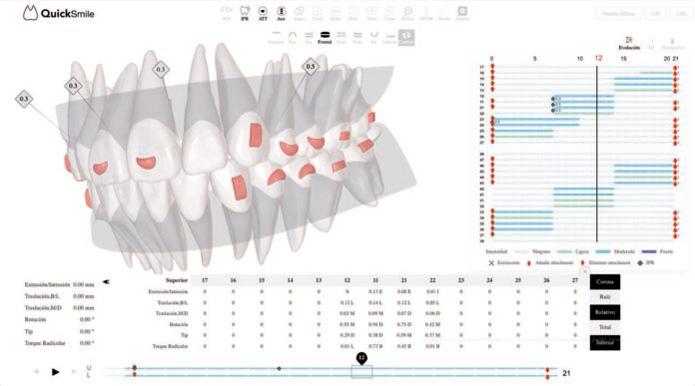 Sistema Quicksmile de ortodoncia invisible