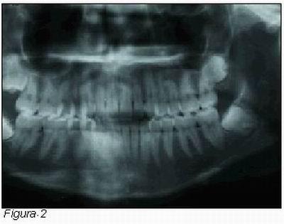 Complicaciones post-quirúrgicas de los cordales incluidos