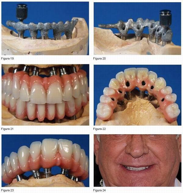 Rehabilitación Sobre Implantes Superior E Inferior La