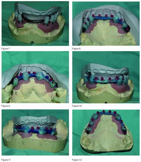 Rehabilitación Mediante Híbridas Atornilladas Gaceta Dental